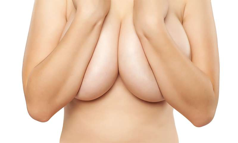 breast-hypertrophy