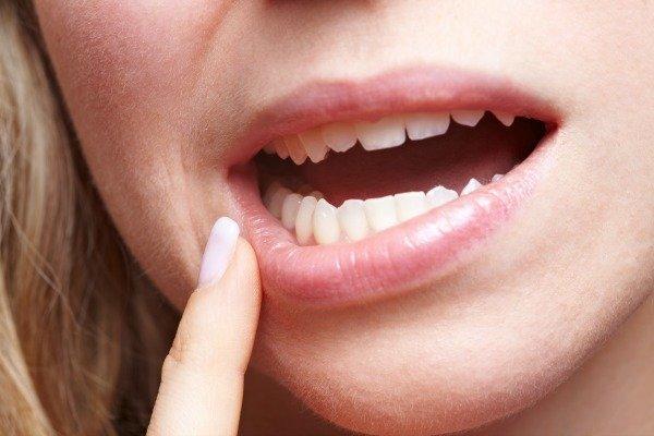 chipped-teeth
