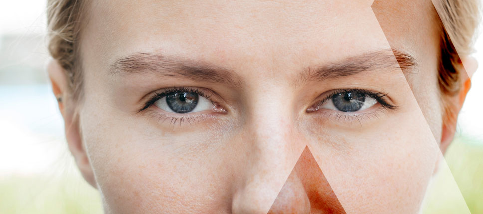 eyebrow-transplant-Turkey