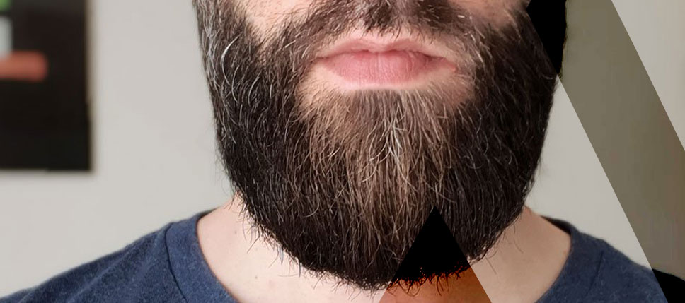 beard-transplant-Turkey