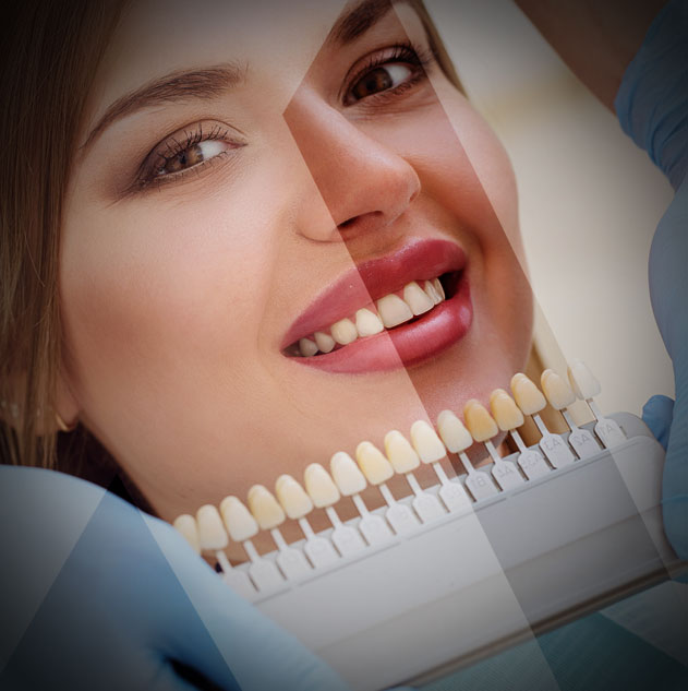 dental-veneers-turkey