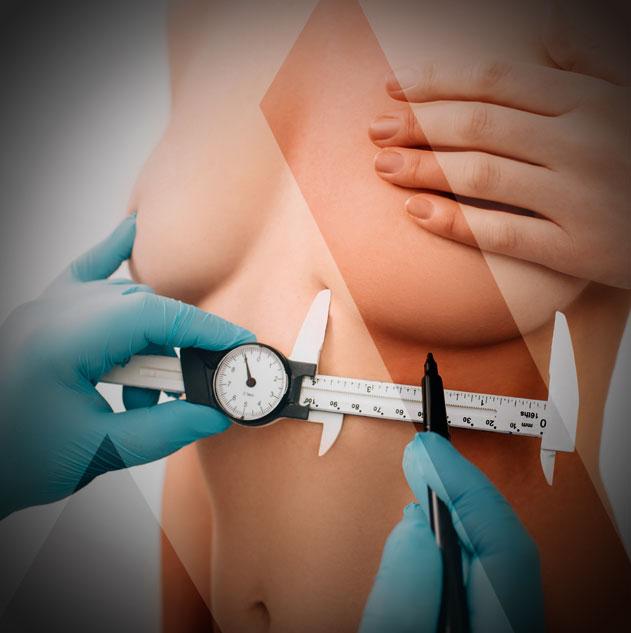 breast-reduction-Turkey