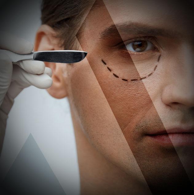 eyelid-surgery-Turkey