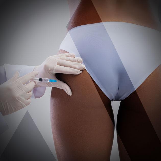 flat-buttocks