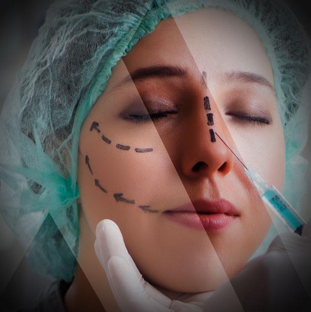 nose-job-surgery
