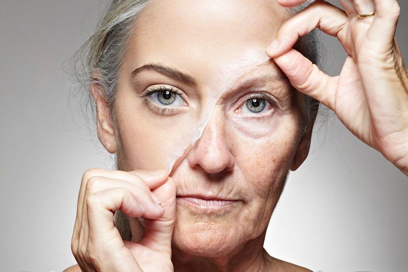 facial-wrinkles